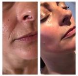 Cryo lifting - Frozen Skin, fotografie 7/4